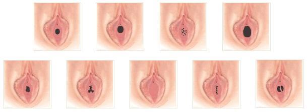 lechenie-zagiba-matki-analnim-seksom
